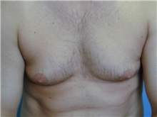 Male Breast Reduction Before Photo by Larry Nichter, MD; Newport Beach, CA - Case 29852