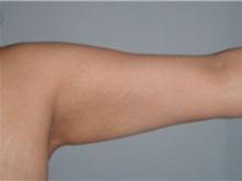 Arm Lift After Photo by Larry Nichter, MD; Newport Beach, CA - Case 29853