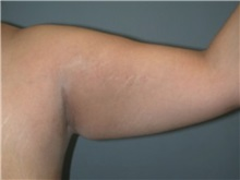 Arm Lift Before Photo by Larry Nichter, MD; Newport Beach, CA - Case 29853