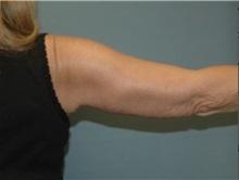 Arm Lift After Photo by Larry Nichter, MD; Newport Beach, CA - Case 29854