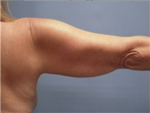 Arm Lift Before Photo by Larry Nichter, MD; Newport Beach, CA - Case 29854