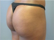 Buttock Lift with Augmentation After Photo by Larry Nichter, MD; Newport Beach, CA - Case 29855