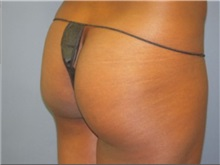 Buttock Lift with Augmentation Before Photo by Larry Nichter, MD; Newport Beach, CA - Case 29855