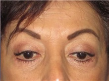 Eyelid Surgery After Photo by Larry Nichter, MD; Newport Beach, CA - Case 29858