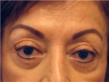 Eyelid Surgery Before Photo by Larry Nichter, MD; Newport Beach, CA - Case 29858