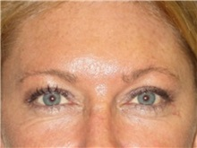 Eyelid Surgery After Photo by Larry Nichter, MD; Newport Beach, CA - Case 29862