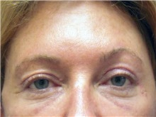 Eyelid Surgery Before Photo by Larry Nichter, MD; Newport Beach, CA - Case 29862