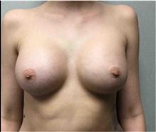 Breast Augmentation After Photo by Mariam Awada, MD, FACS; Southfield, MI - Case 33923