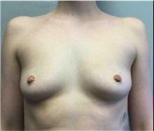 Breast Augmentation Before Photo by Mariam Awada, MD, FACS; Southfield, MI - Case 33923
