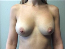 Breast Augmentation After Photo by Mariam Awada, MD, FACS; Southfield, MI - Case 33924