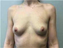 Breast Augmentation Before Photo by Mariam Awada, MD, FACS; Southfield, MI - Case 33924