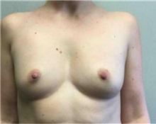Breast Augmentation Before Photo by Mariam Awada, MD, FACS; Southfield, MI - Case 33927