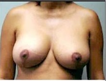 Breast Lift After Photo by Mariam Awada, MD, FACS; Southfield, MI - Case 33950