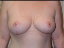 Breast Lift After Photo by Mariam Awada, MD, FACS; Southfield, MI - Case 33951