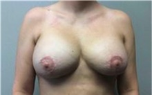 Breast Implant Removal After Photo by Mariam Awada, MD, FACS; Southfield, MI - Case 38834