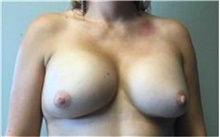 Breast Implant Removal Before Photo by Mariam Awada, MD, FACS; Southfield, MI - Case 38834