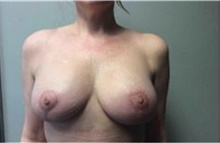 Breast Implant Removal After Photo by Mariam Awada, MD, FACS; Southfield, MI - Case 38836
