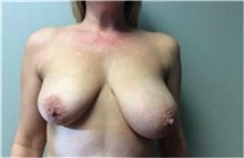 Breast Implant Removal Before Photo by Mariam Awada, MD, FACS; Southfield, MI - Case 38836