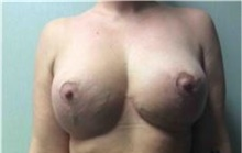 Breast Implant Removal After Photo by Mariam Awada, MD, FACS; Southfield, MI - Case 38837