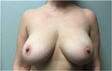 Breast Implant Removal Before Photo by Mariam Awada, MD, FACS; Southfield, MI - Case 38837