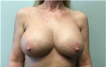Breast Implant Removal After Photo by Mariam Awada, MD, FACS; Southfield, MI - Case 38838