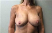 Breast Implant Removal Before Photo by Mariam Awada, MD, FACS; Southfield, MI - Case 38838