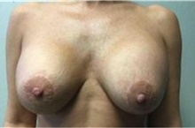 Breast Implant Removal After Photo by Mariam Awada, MD, FACS; Southfield, MI - Case 38840