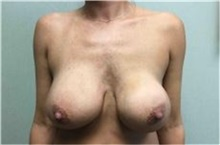 Breast Implant Removal Before Photo by Mariam Awada, MD, FACS; Southfield, MI - Case 38840