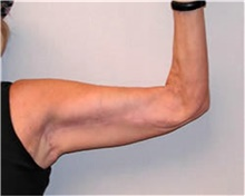 Arm Lift After Photo by Mariam Awada, MD, FACS; Southfield, MI - Case 38868