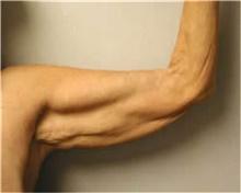 Arm Lift Before Photo by Mariam Awada, MD, FACS; Southfield, MI - Case 38868