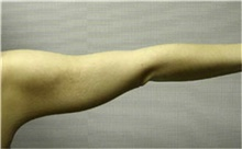 Arm Lift After Photo by Mariam Awada, MD, FACS; Southfield, MI - Case 38869