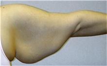 Arm Lift Before Photo by Mariam Awada, MD, FACS; Southfield, MI - Case 38869