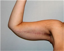 Arm Lift After Photo by Mariam Awada, MD, FACS; Southfield, MI - Case 38870