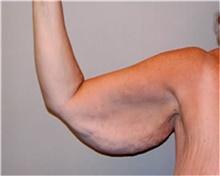 Arm Lift Before Photo by Mariam Awada, MD, FACS; Southfield, MI - Case 38870