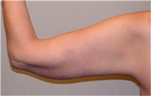 Arm Lift After Photo by Mariam Awada, MD, FACS; Southfield, MI - Case 38872
