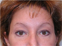 Brow Lift After Photo by Mariam Awada, MD, FACS; Southfield, MI - Case 38882