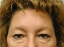Brow Lift Before Photo by Mariam Awada, MD, FACS; Southfield, MI - Case 38882