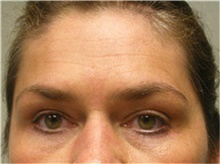 Brow Lift After Photo by Mariam Awada, MD, FACS; Southfield, MI - Case 38883