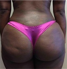 Buttock Lift with Augmentation After Photo by Mariam Awada, MD, FACS; Southfield, MI - Case 38886