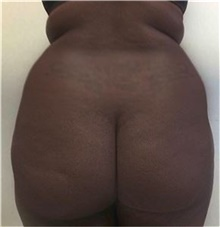 Buttock Lift with Augmentation Before Photo by Mariam Awada, MD, FACS; Southfield, MI - Case 38886