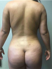 Buttock Lift with Augmentation After Photo by Mariam Awada, MD, FACS; Southfield, MI - Case 38887