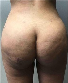 Buttock Lift with Augmentation After Photo by Mariam Awada, MD, FACS; Southfield, MI - Case 38889
