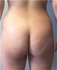 Buttock Lift with Augmentation Before Photo by Mariam Awada, MD, FACS; Southfield, MI - Case 38889