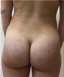 Buttock Lift with Augmentation After Photo by Mariam Awada, MD, FACS; Southfield, MI - Case 38891