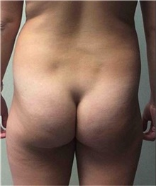 Buttock Lift with Augmentation Before Photo by Mariam Awada, MD, FACS; Southfield, MI - Case 38891