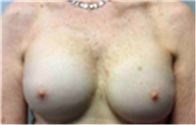 Breast Implant Removal After Photo by Mariam Awada, MD, FACS; Southfield, MI - Case 40147