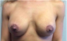 Breast Implant Removal After Photo by Mariam Awada, MD, FACS; Southfield, MI - Case 40149