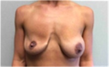 Breast Implant Removal Before Photo by Mariam Awada, MD, FACS; Southfield, MI - Case 40149