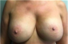 Breast Implant Removal After Photo by Mariam Awada, MD, FACS; Southfield, MI - Case 40150
