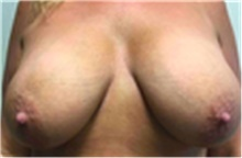 Breast Implant Removal Before Photo by Mariam Awada, MD, FACS; Southfield, MI - Case 40150